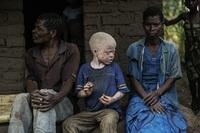 Жуткая реальность: в Африке людей-альбиносов убивают, чтобы сделать из них амулеты