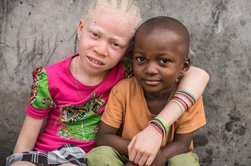 фото альбиносов африканцев аниме