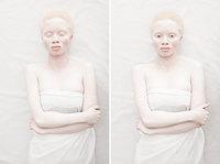 Фотограф показал гипнотизирующую красоту людей-альбиносов со всего мира